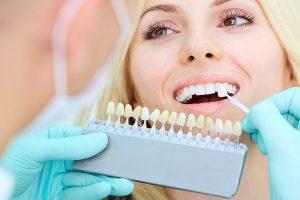 Prueba de color para blanqueamiento dental