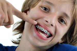 ortodoncia infantil en san vicente del raspeig