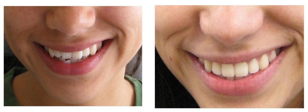 cambios despues de tratamiento de ortodoncia en san vicente del raspeig