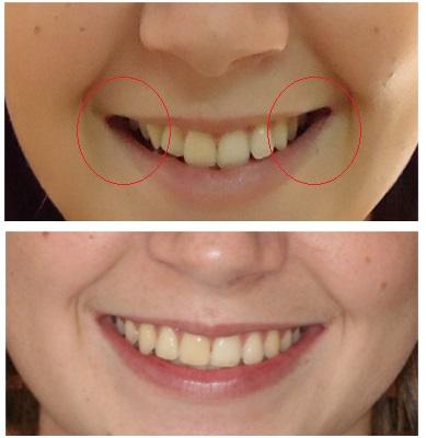 cambios después de tratamiento de ortodoncia en san vicente del raspeig. pasillos oscuros.