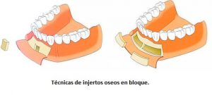 injerto en bloque para colocar implantes dentales