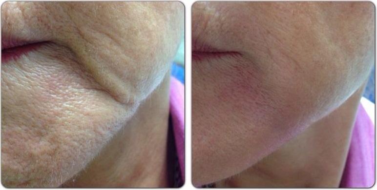 aplicación de acido hialuronico sobre arruga