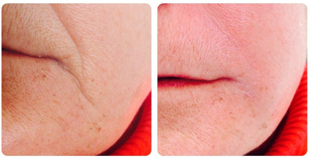 infiltracion de acido hialuronico en arruga