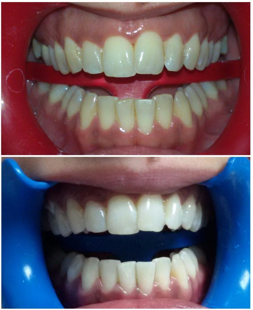 blanqueamiento dental: 2 sesiones