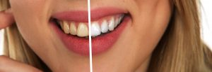 blanqueamiento dental comparativa