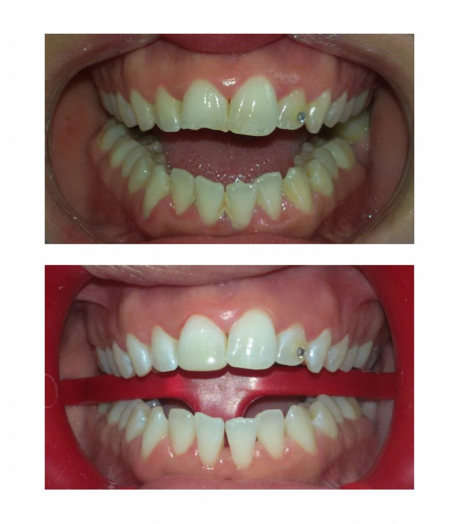 blanqueamiento dental y reconstruccion