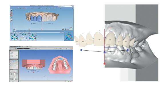 diseño de sonrisa y prótesis dentales
