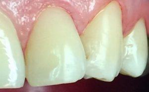 empastes en cuellos de dientes