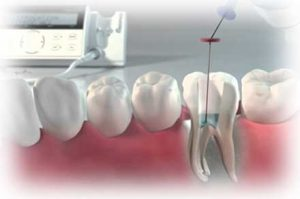 Odontología restauradora: endodoncia