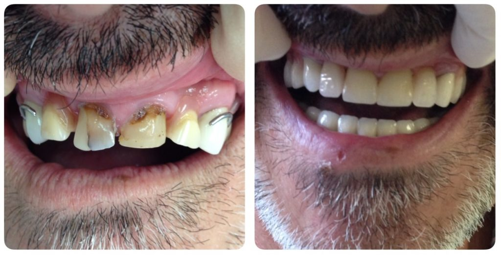 prótesis dentales tipo esqueletico