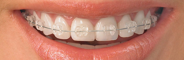 ortodoncia en san vicente del raspeig. ortodoncia estética zafiro