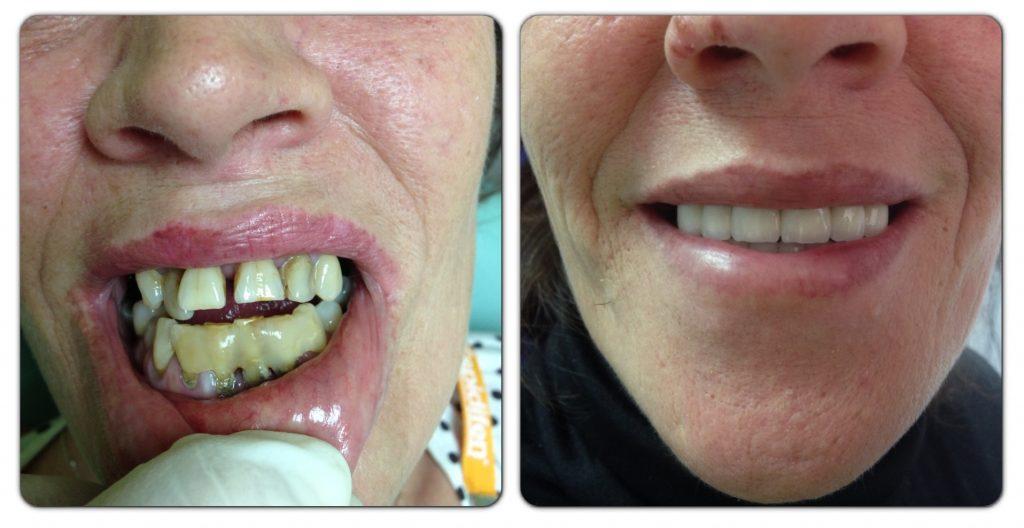 tratamiento con fundas dentales