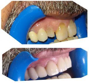 fundas dentales de zirconio
