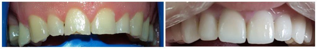 Odontología restauradora: fundas dentales superiores