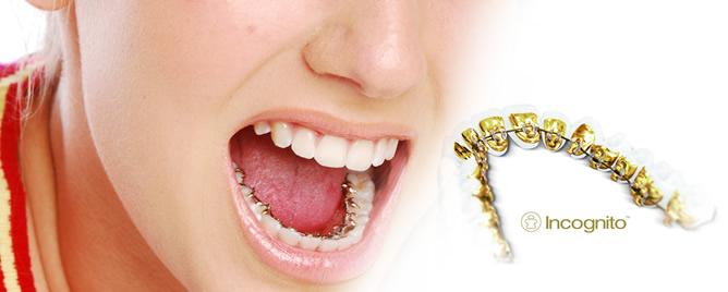 ortodoncia en san vicente del raspeig. ortodoncia estética incognito