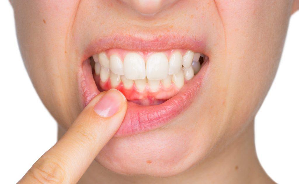 encia sangrante por gingivitis