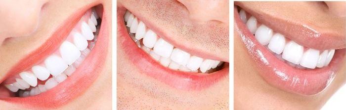 estetica dental con carillas dentales 3 casos