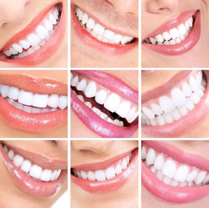 estetica dental con carillas dentales