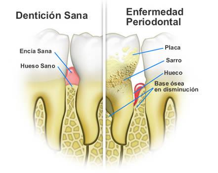 estudio de la periodontitis
