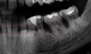 evaluación de periodoncia en san vicente con radiografía