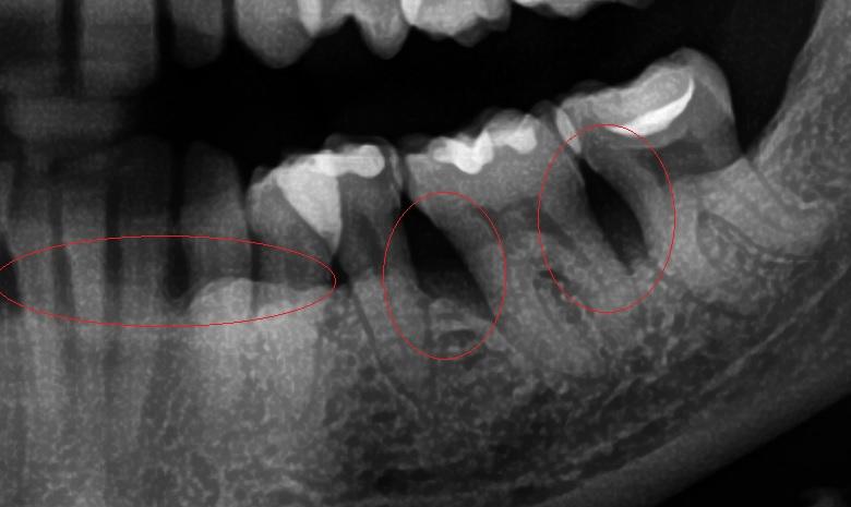 radiografía con pérdida osea por periodontitis