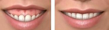 corrección de sonrisa gingival mediante cirugía estética de encías.