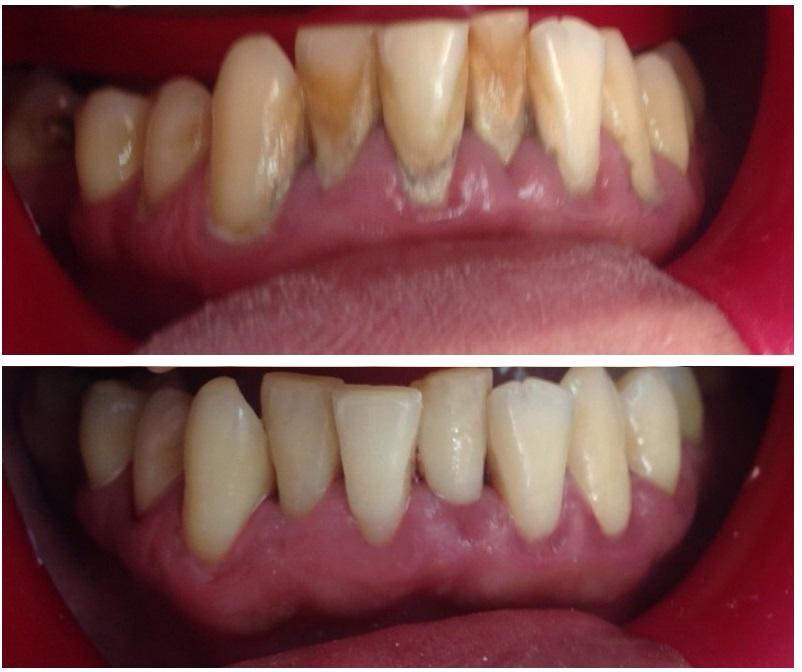 tratamiento de periodontitis con curetajes en sector inferior