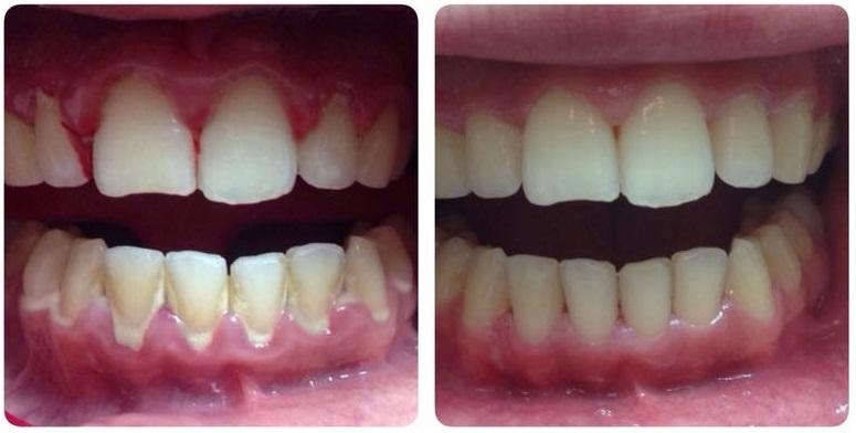 tratamiento de periodontitis con curetajes