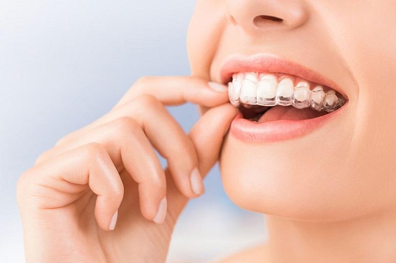 ortodoncia invisible en san vicente