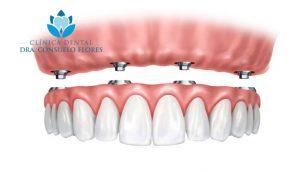 protesis dental fija