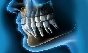 tipos de implantes dentales de titanio