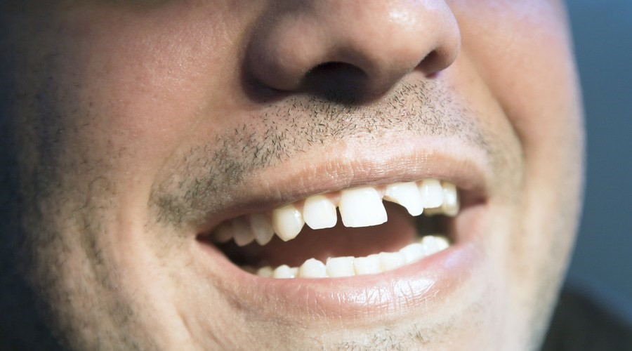 diente-roto