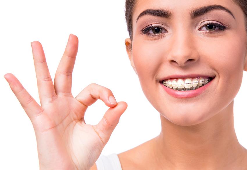tiempo-ortodoncia