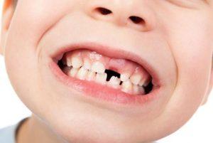 dientes-leche