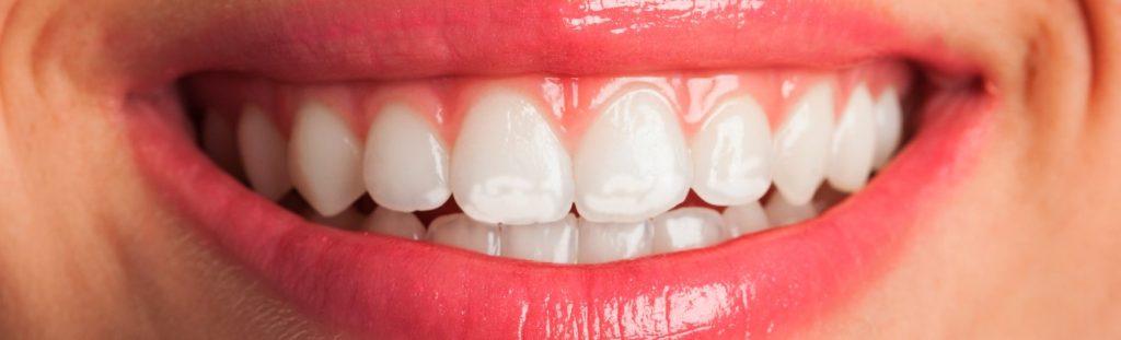 manchas-blancas-dientes