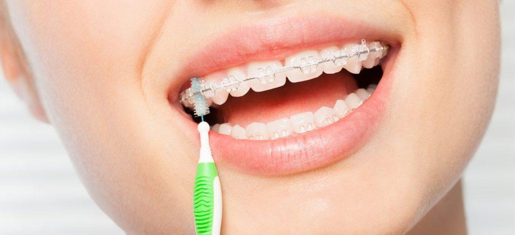 pautas-cepillar-dientes-brackets