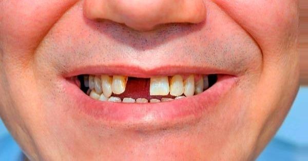 consecuencias-desgaste-dental