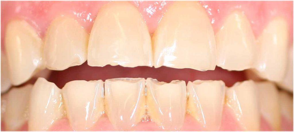 desgaste-dientes