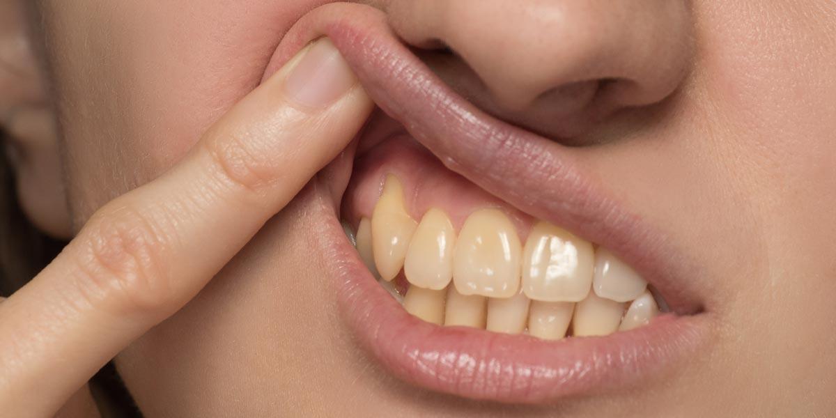 Desgaste en el cuello de los dientes