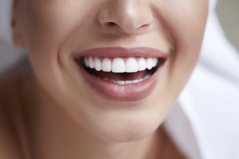 cuidados-carillas-dentales