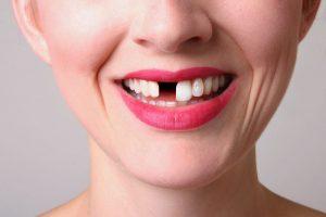 riesgos-dientes-leche