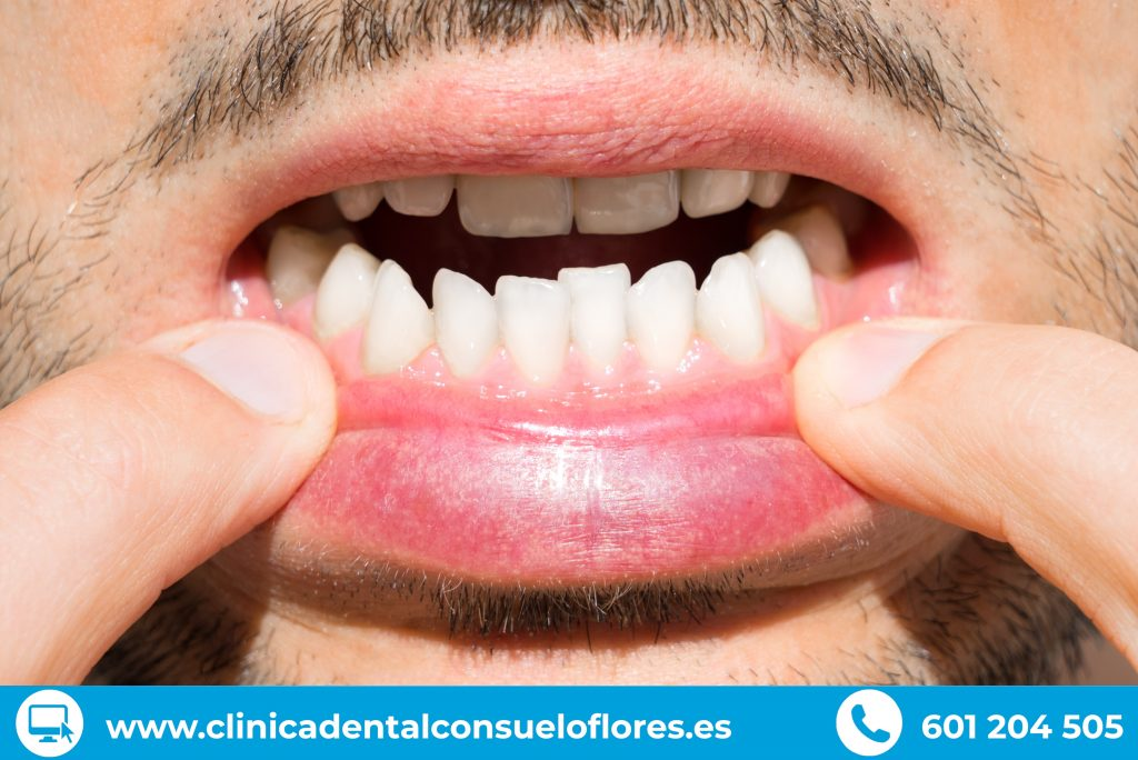 el apiñamiento dental